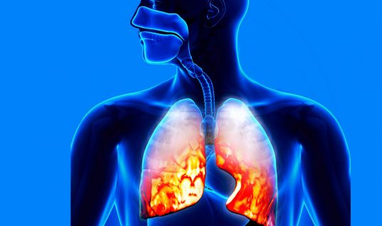 Pneumonia: 15 Things You Should Know (Part 1)