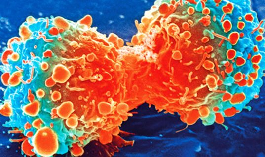 Cancer: Top 8 Miraculous Stories of Being Cured