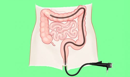 Colonoscopy: Top 7 Health Benefits
